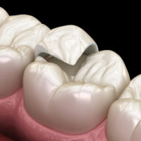 Onlay ceramic crown fixation over tooth. Medically accurate 3D i