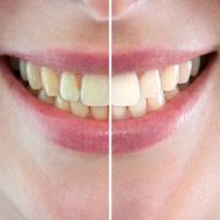 Denti prima e dopo sbiancamento
